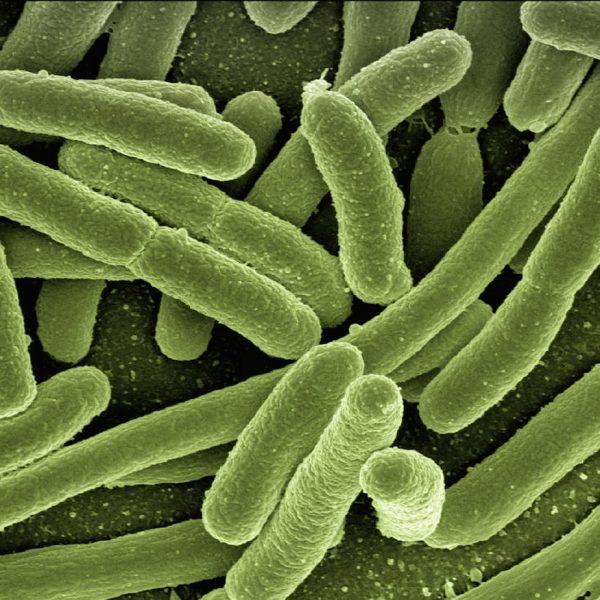 odstranovani-patogenu-biorezonanci-BIORET