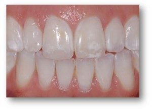 fluoroza-skvrny-na-zubech